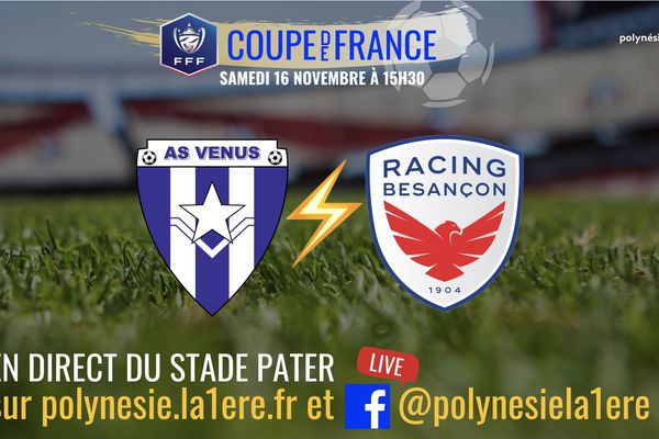 Coupe de France : AS Vénus vs racing Besançon