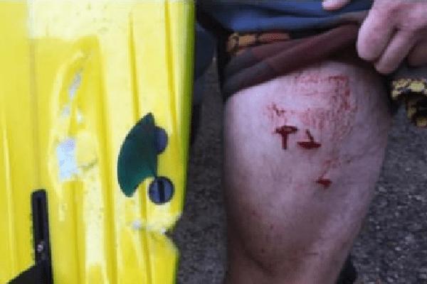 Le surfeur a été mordu à la jambe