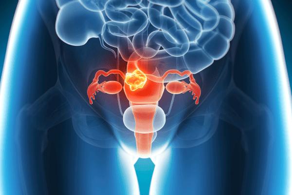 Dépistage cancer utérus