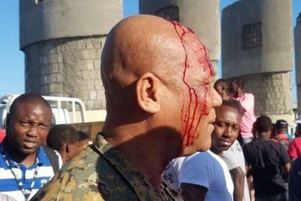 Haïti agent de securité blessé