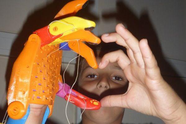 Mayeul et sa main imprimée en 3D