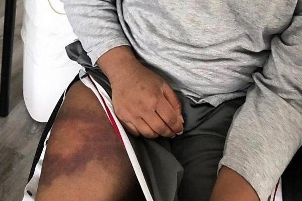 violence jeune martiniquais