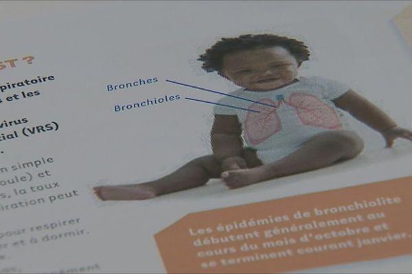 Bronchiolote