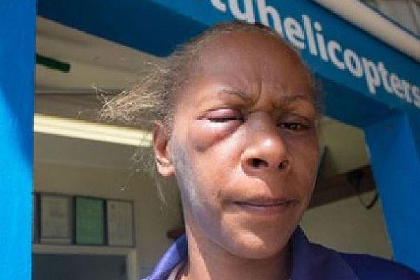 Florence Lengkon après son agression