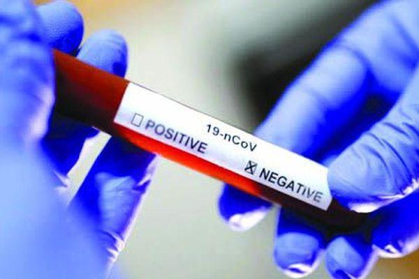 Coronavirus : vers un passage en stade 3 de l'épidémie...