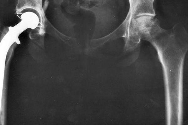 Prothèse de la hanche