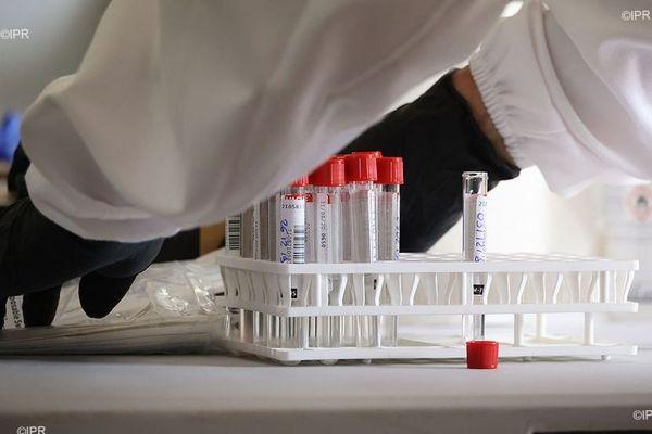 coronavirus covid test dépistage 08 2020