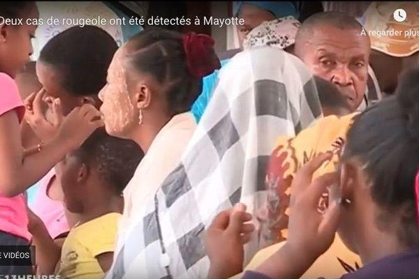 Rougeole : deux cas ont été détectés à Mayotte