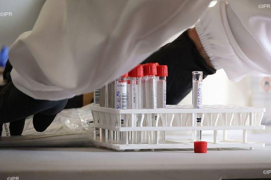 Des scientifiques de La Réunion mettent au point le RunCov, un test Covid plus rapide et plus pratique que le - Outre-mer la 1ère