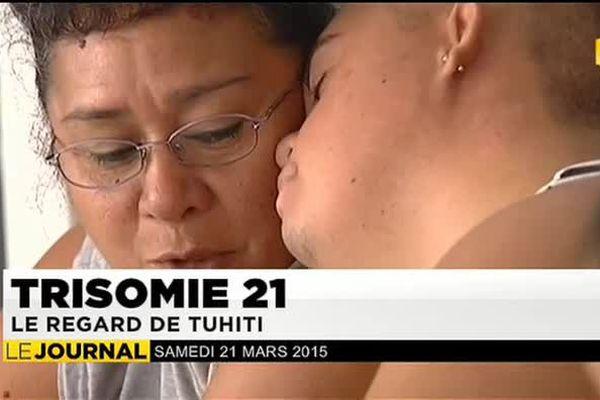 TRISOMIE 21 : le regard de Tuhiti