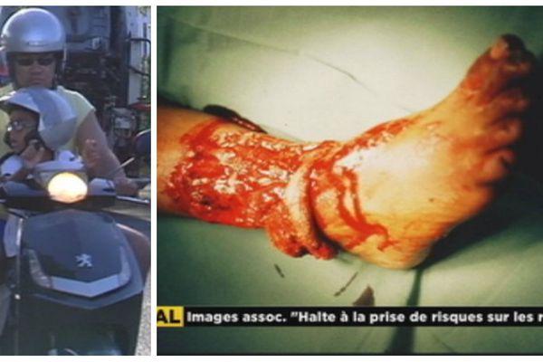 Dangers de la route en deux roues : attention à vos pieds