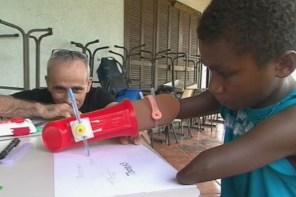 Thomas et le prototype de sa prothèse 3D
