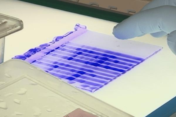 Le Noumeavirus, un virus géant aux propriétés étonnantes