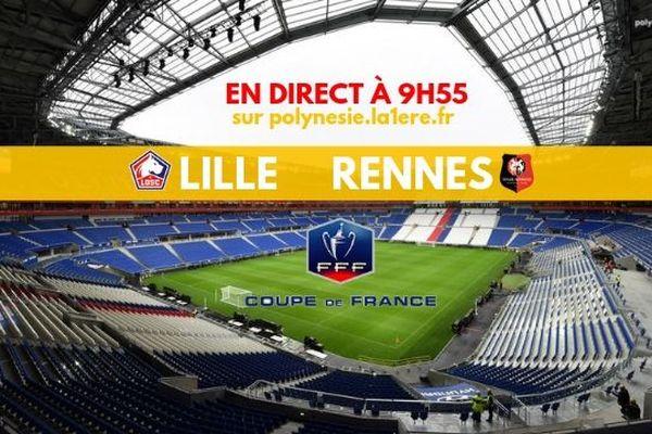 Suivez les 8e de finale de la Coupe de France de foot en live sur internet !