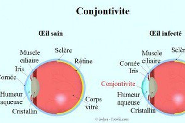 Conjonctivite 2