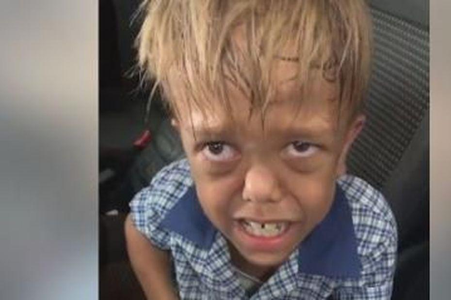 Quaden, après le harcèlement scolaire, victime des réseaux sociaux - Réunion la 1ère
