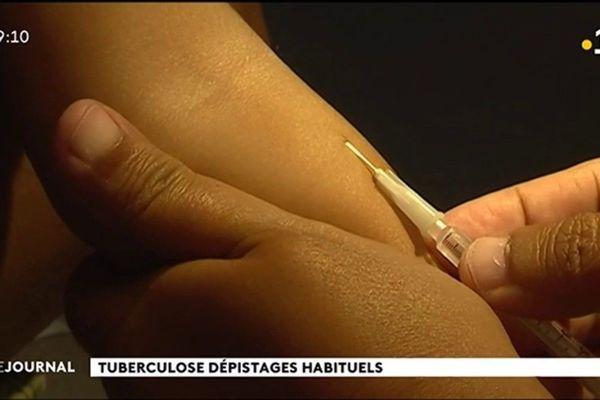 Tuberculose au lycée Gauguin : infectés mais pas malades