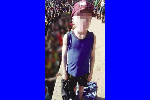 Enfant albinos malgache sauvé par les gendarmes le 16 septembre 2021