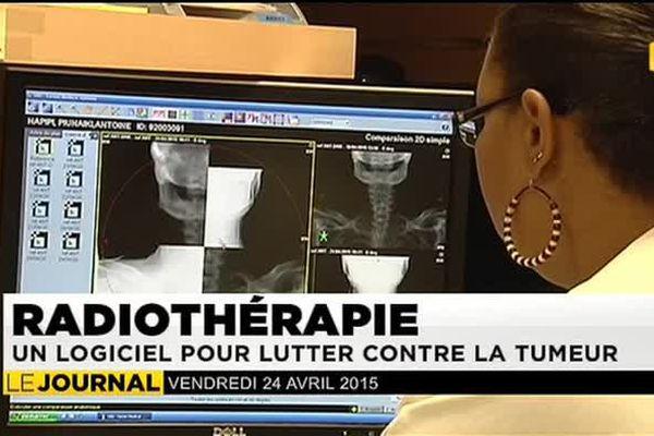 Des radiothérapies plus ciblées au CHT du Taaone