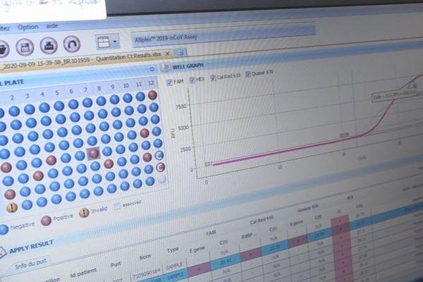 coronavirus covid test dépistage 100920