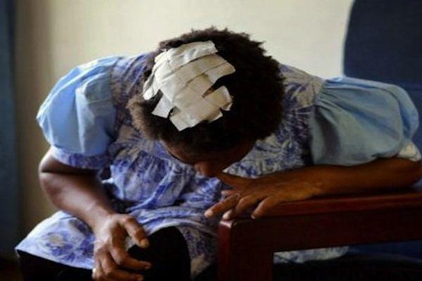 Une femme papoue victime de violence conjugale