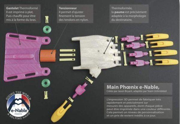 Une prothèse réalisée avec une imprimante 3D