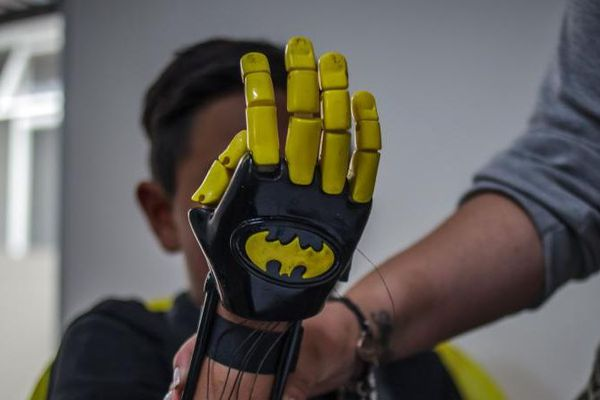 Une prothèse batman