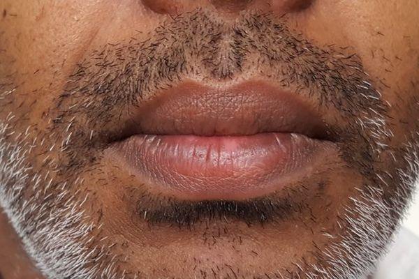 20161104 Moustache