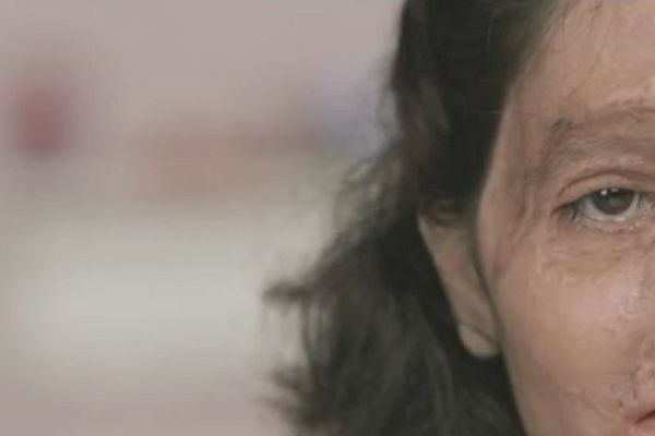 Inde : Reshma et pétition contre attaque acide