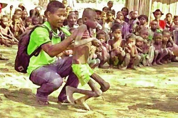 Famine dans le Sud de Madagascar 2 décembre 2020