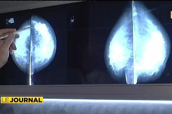 Cancer du sein et de l'utérus : faites vous dépister !