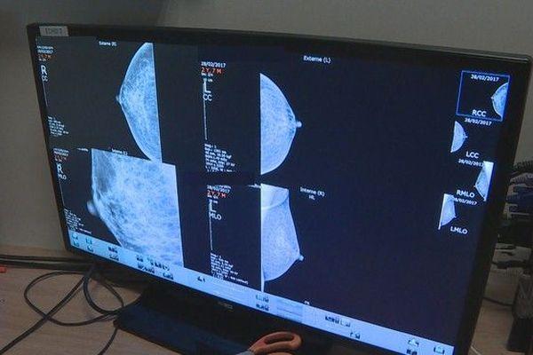 Octobre Rose dépistage du cancer du sein mammographie examen GHER 101019