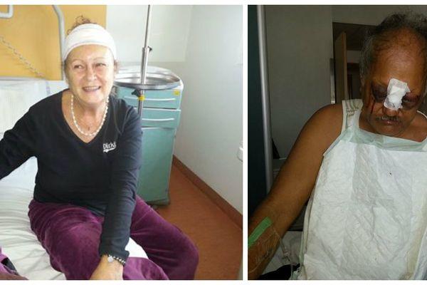 Hinano Mamatui et son mari Henri Mamatui agressés dans leur domicile en Nouvelle Calédonie