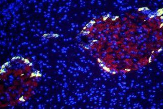 Des cellules bêta (en rouge). (Photo : J. Zbaeren/Eurelios)