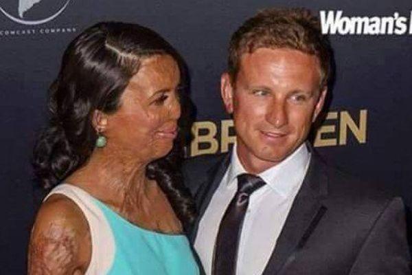 Turia Pitt et Michael Hoskin : l'amour plus fort que tout !