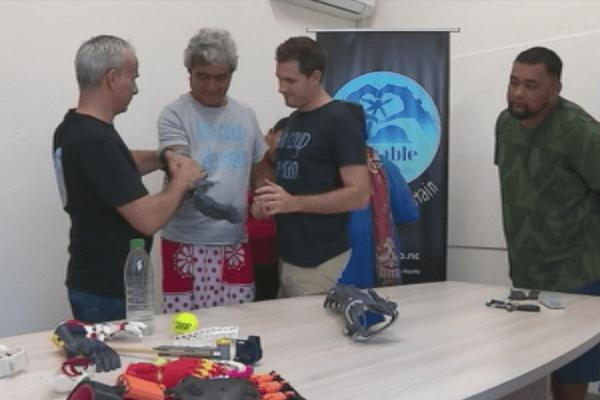 Deux prothèses d'avant-bras imprimées en 3D
