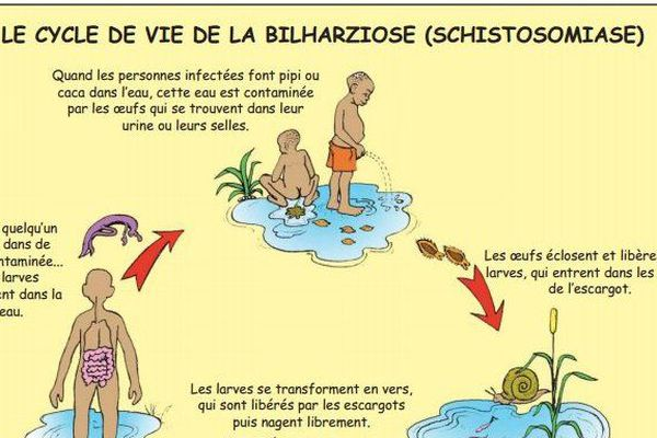 BILHARZIOSE ou SCHISTOSOMIASE