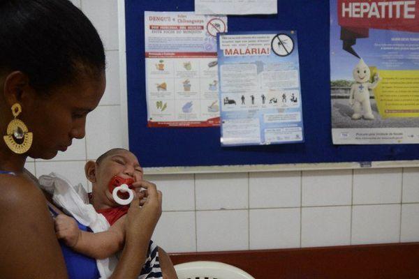 David Henrique Ferreira, 5 mois qui est né avec une microcéphalie à Recife au Brésil