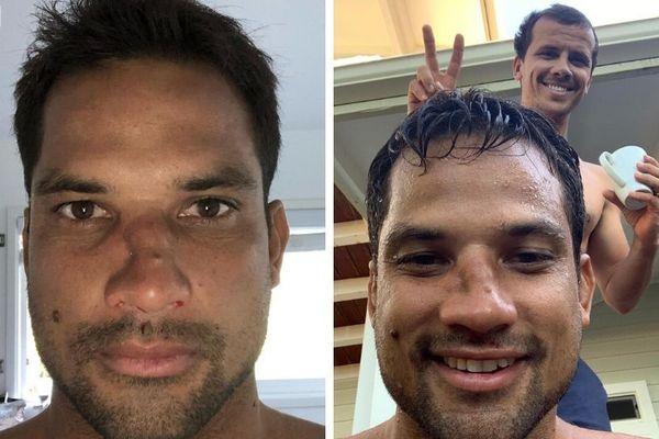 Michel Bourez se casse le nez lors d'un wipe out à Hawaï