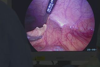 greffe organe